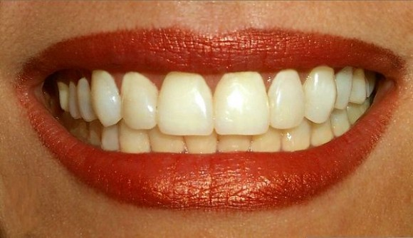 Наступление менопаузы — потеря зубов?