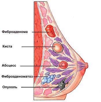 Как предотвратить возникновение кистозно — фиброзной мастопатии