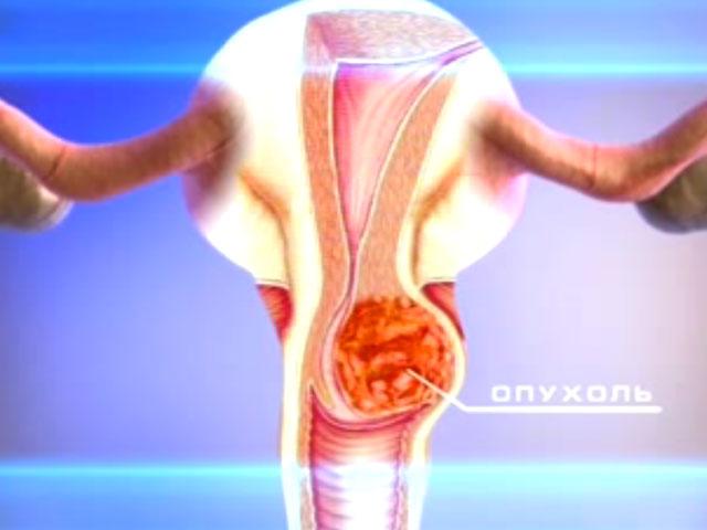 При помощи специального теста, самостоятельно можно диагностировать рак шейки матки на ранних стадиях