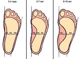 Причины возникновения,выявления и лечение плоскостопия