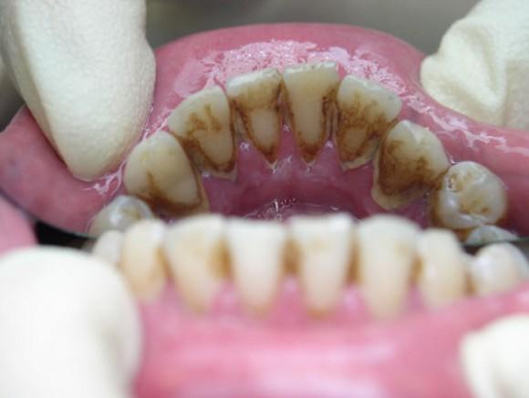Зубной камень в домашних условиях как избавиться