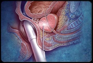 Как выявить рак предстательной железы?