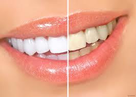Отбелить зубы дома просто!
