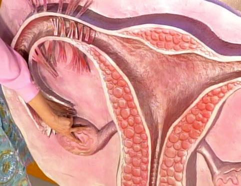 Поликистозные яичники – опасное и сложное заболевание