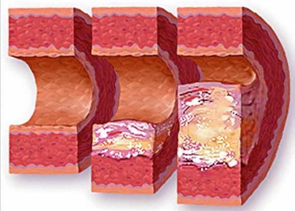 Нетрадиционные методы терапии атеросклероза