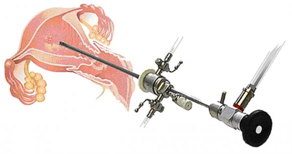 Гистероскопия удаление полипа