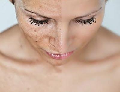 Как стереть возрастные пятна на коже