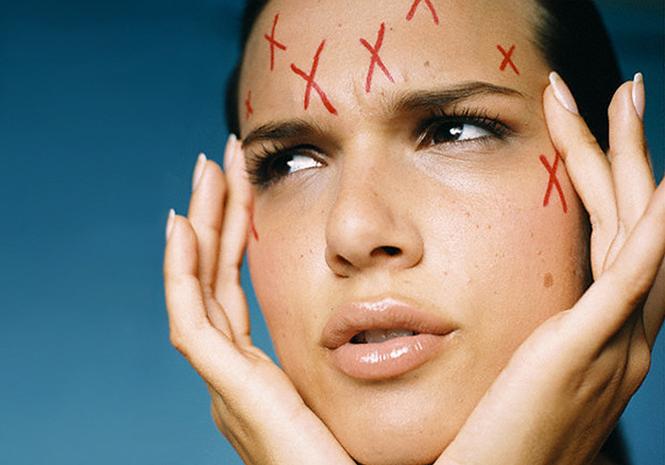 Уход за проблемной кожей лица: советы