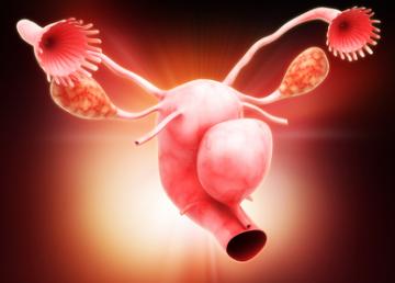 Диета при фибромиоме матки