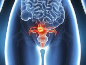 Лекарства от бесплодия могут вызывать рак