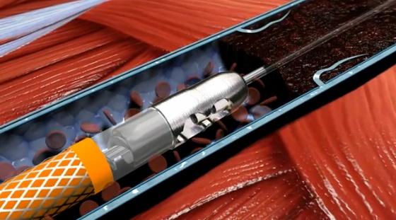 Рентгенэндоваскулярные методы восстановления магистрального кровотока при критической ишемии конечности