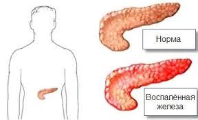 Поджелудочная железа. Панкреатит, панкреонекроз