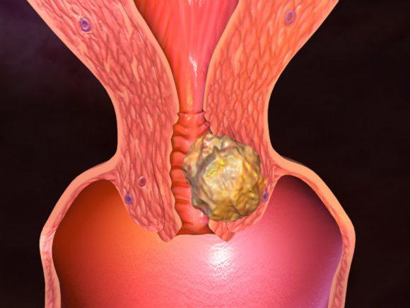Ранний секс приводит к раку