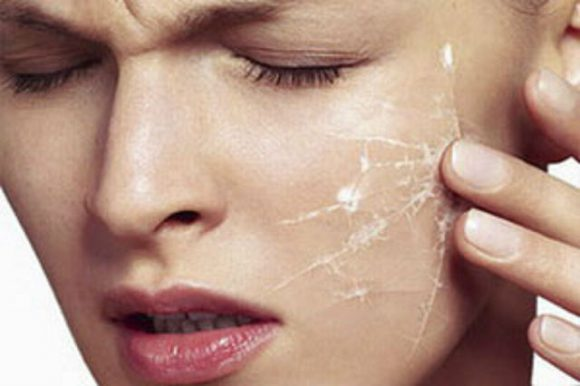 Почему трудно избавиться от проблемы чувствительной кожи