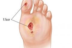 Комплексное лечение трофических язв в Центре AntiUlcer