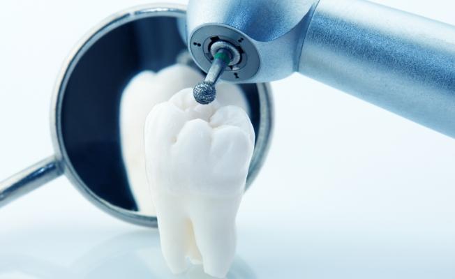 Стоматология. Удаление зубного камня