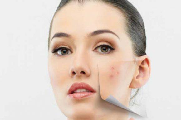 Натуральные средства, помогающие удалить угревую сыпь и шрамы