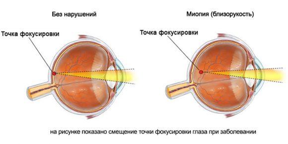 Тяжелое заболевание зрительного аппарата-миопия