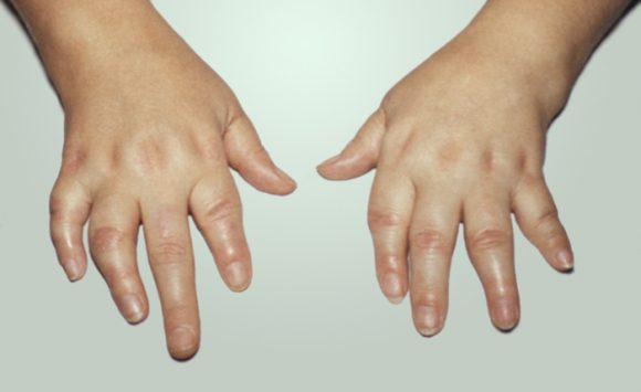 Ревматоидный псориаз