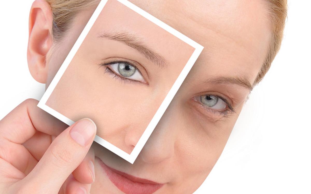 Как избавиться от синих кругов под глазами – разные методы