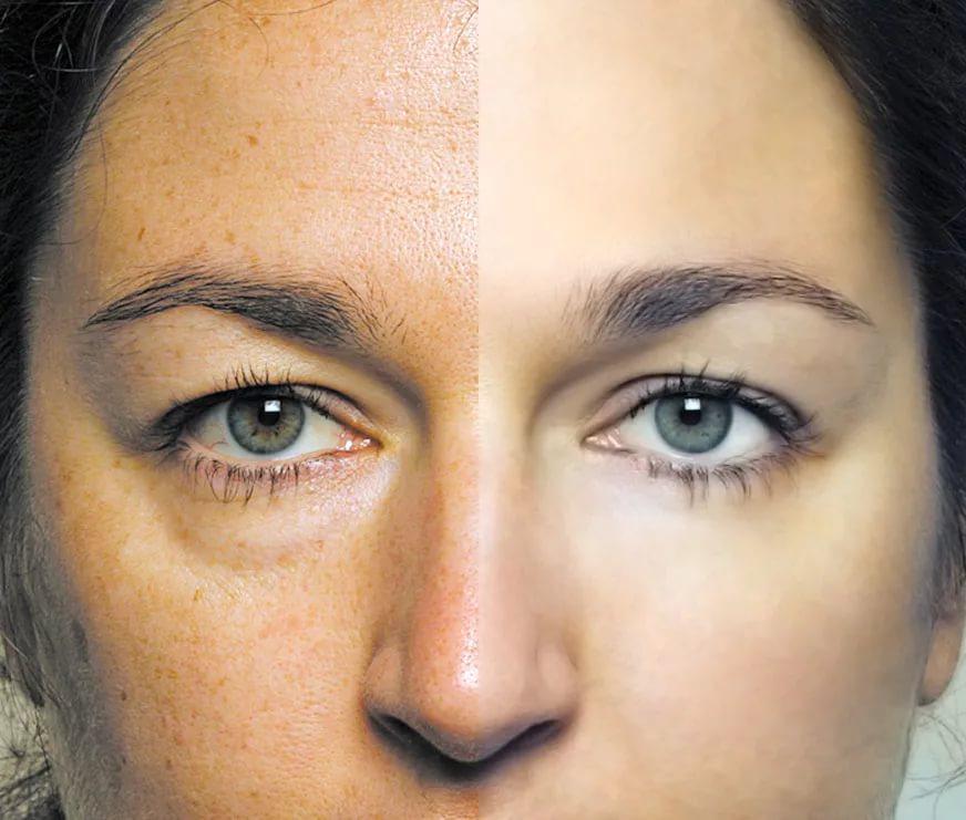 Ученые предлагают более эффективный метод избавления от «мешков» под глазами