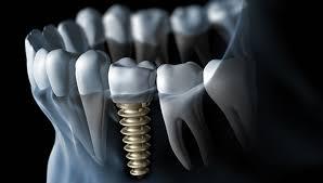 Виды зубных имплантов и эффективный уход.