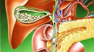 Холецистит: причины, формы, симптомы и лечение