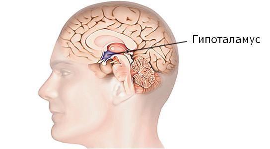 Проявления гипоталамического синдрома пубертатного периода