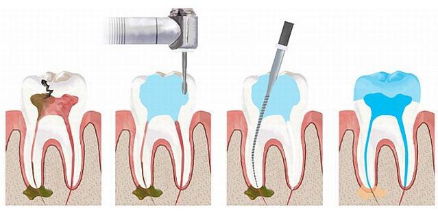 Временная пломба с мышьяком болит зуб