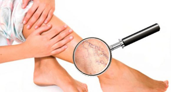 Симптомы варикоза: усиление рисунка вен на коже ног