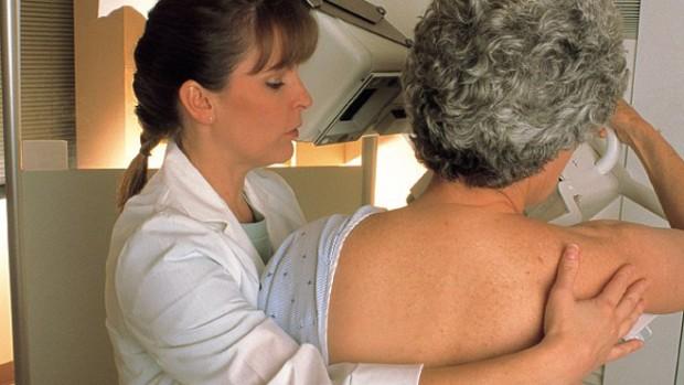 Поздняя менопауза повышает риск развития рака молочной железы