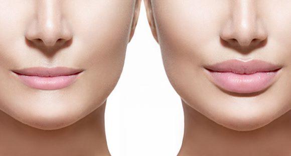 Пухлые губы – мечта каждой девушки