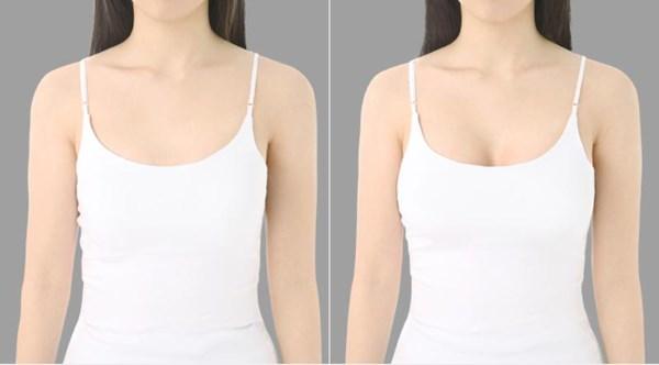Липофилинг как метод увеличения груди