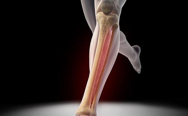 Особенности лечения перелома берцовой кости