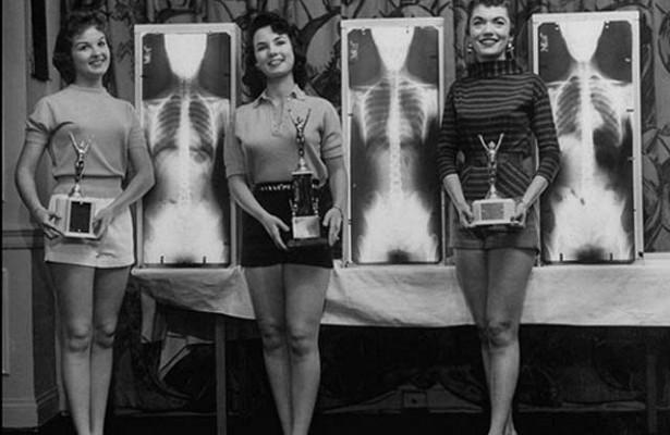 Молочница: что важно знать умной женщине