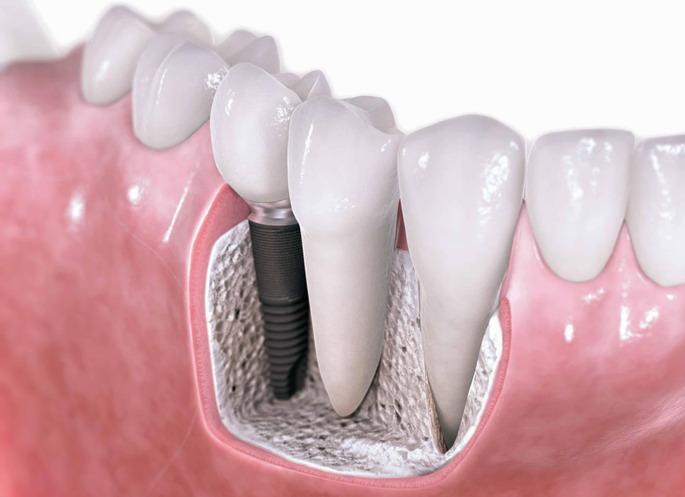 Показание и удаление зубного импланта