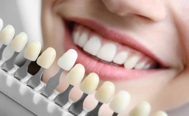 Стоматология. Косметическая стоматология — больше, чем просто имплантация зубов