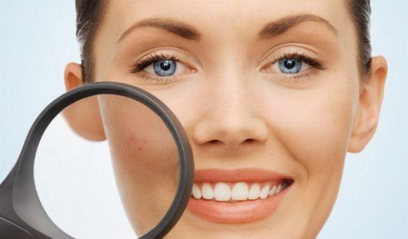 Уход за кожей с повышенной активностью сальных желез