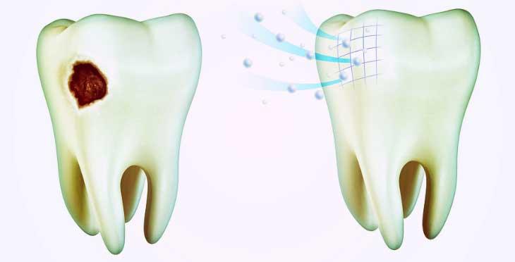 Зачем нужно чистить зубы