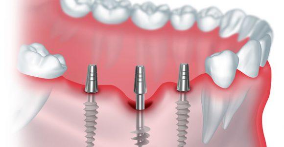 Имплантация зубов: важные нюансы