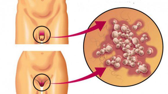 Генитальным герпесом можно заразиться при контакте с предметами гигиены инфицированного человека