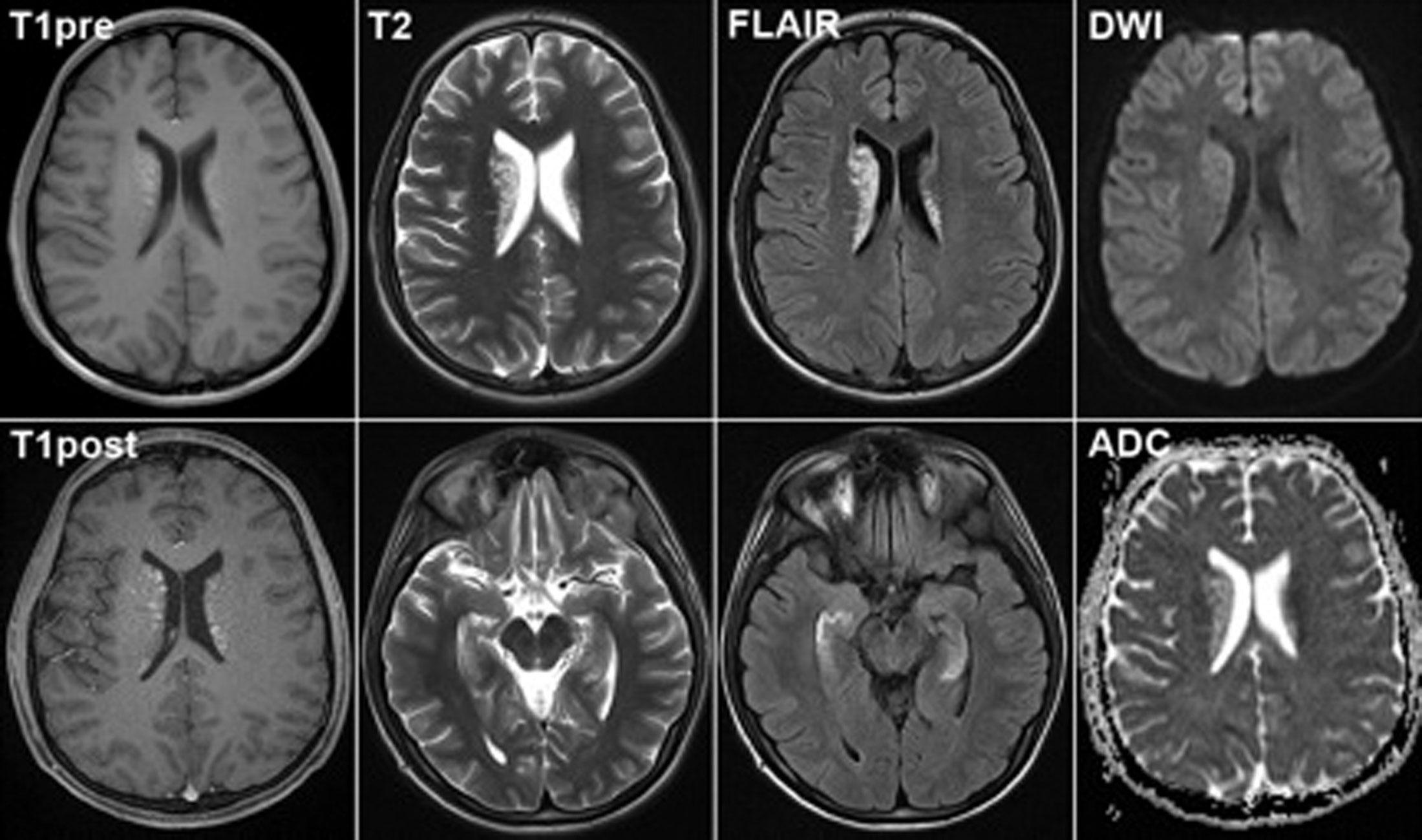 Стоимость МРТ головного мозга и шеи, адреса и контакты медицинских центров