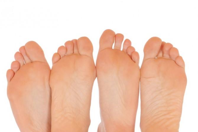 Лечение косточки на ноге без особых усилий