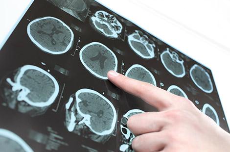 Аурикулотерапия для лечения болезни Паркинсона