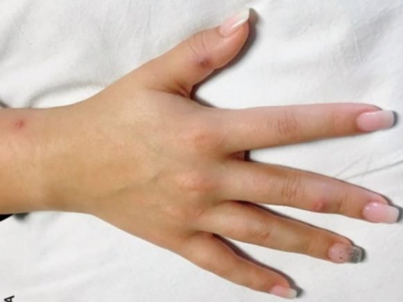 Гонорея может распространяться через руки