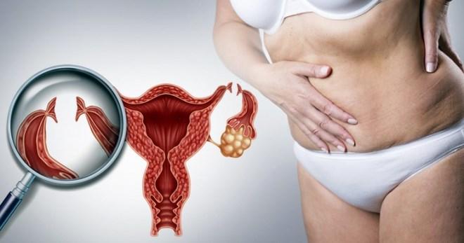 Миома матки и ее сочетание с другими заболеваниями