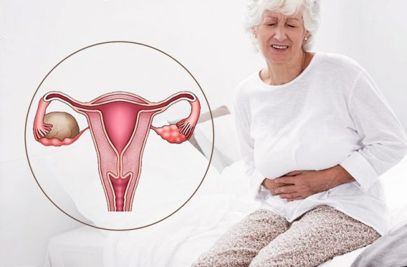 Как не пропустить кисту яичника: 4 тревожных симптома