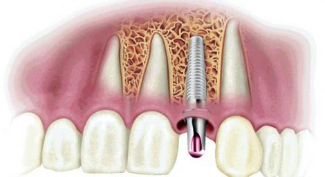 Экспресс-имплантация зубов в Киеве