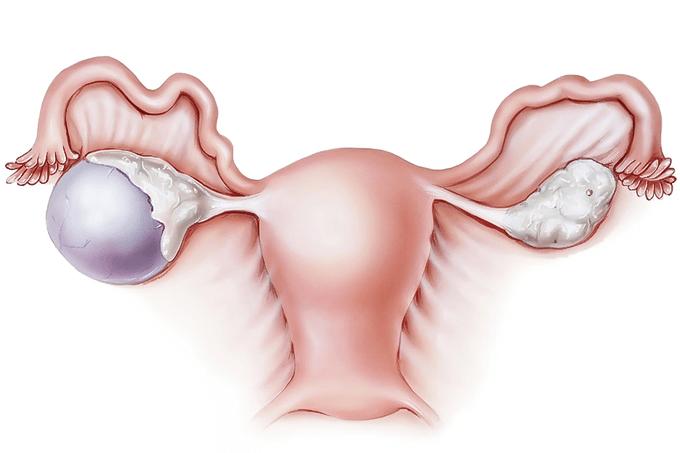 7 незаметных признаков, указывающих на кисту яичника