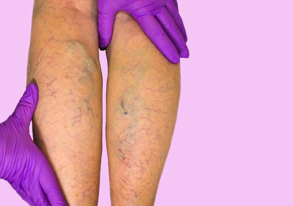 Варикозная болезнь вен нижних конечностей: диагностика, стадийность, симптомы